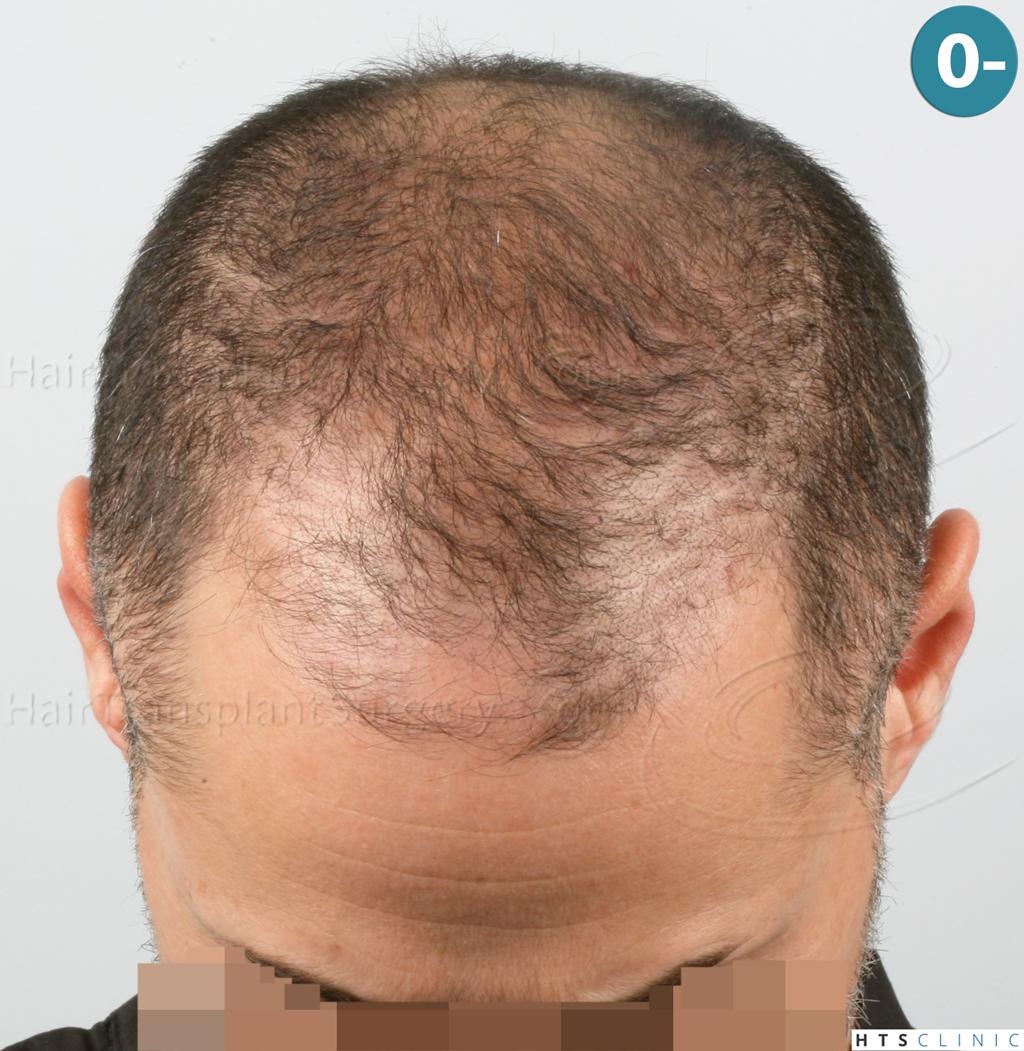 Dr.Devroye-HTS-Clinic-3654_2132-FUE-2.jpg