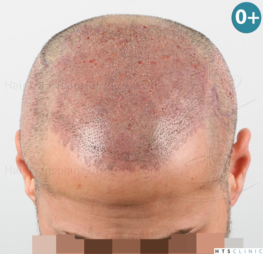 Dr.Devroye-HTS-Clinic-3654_2132-FUE-8.jpg