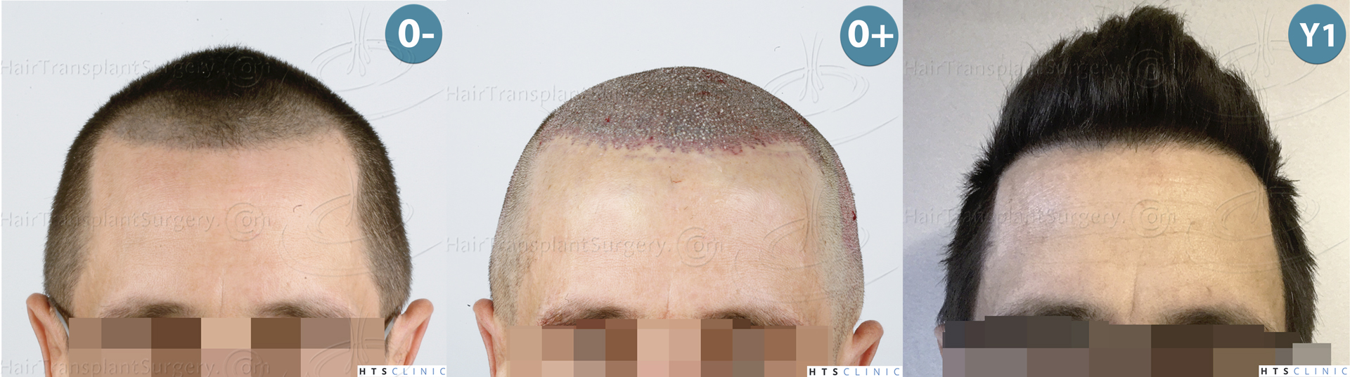 Dr.Devroye-HTS-Clinic-2950-FUE-NW-III-Montage-1.jpg