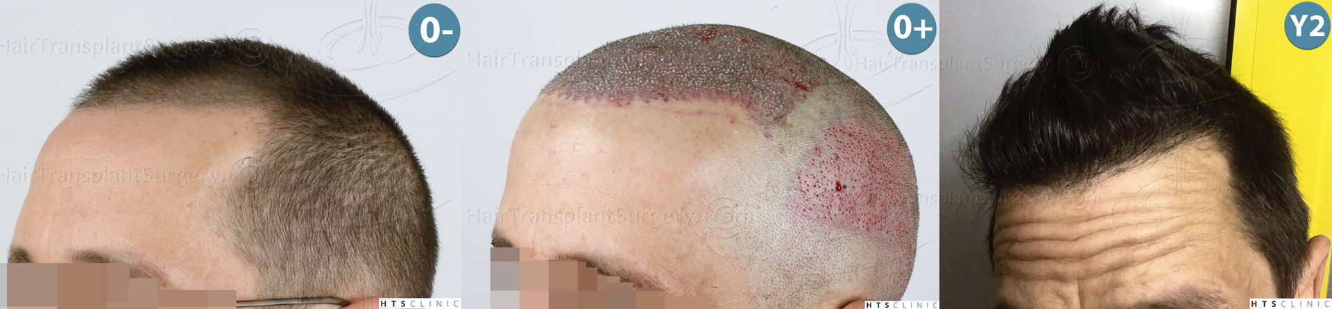 Dr.Devroye-HTS-Clinic-2950-FUE-NW-III-Montage-3.jpg