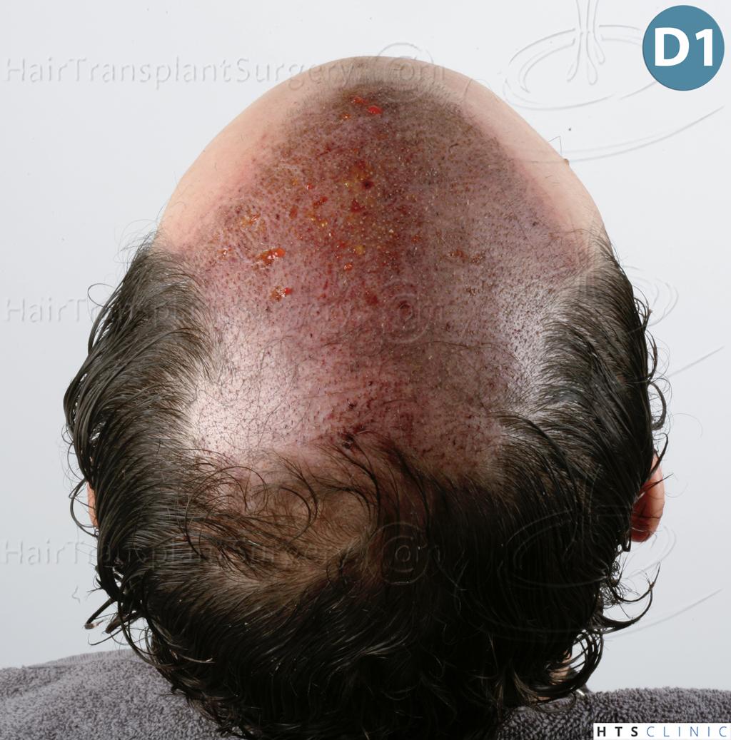 Dr.Devroye-HTS-Clinic-3920-FUT-12.jpg