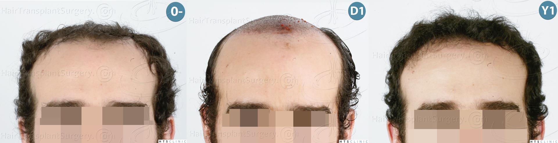 Dr.Devroye-HTS-Clinic-3920-FUT-Montage-1.jpg