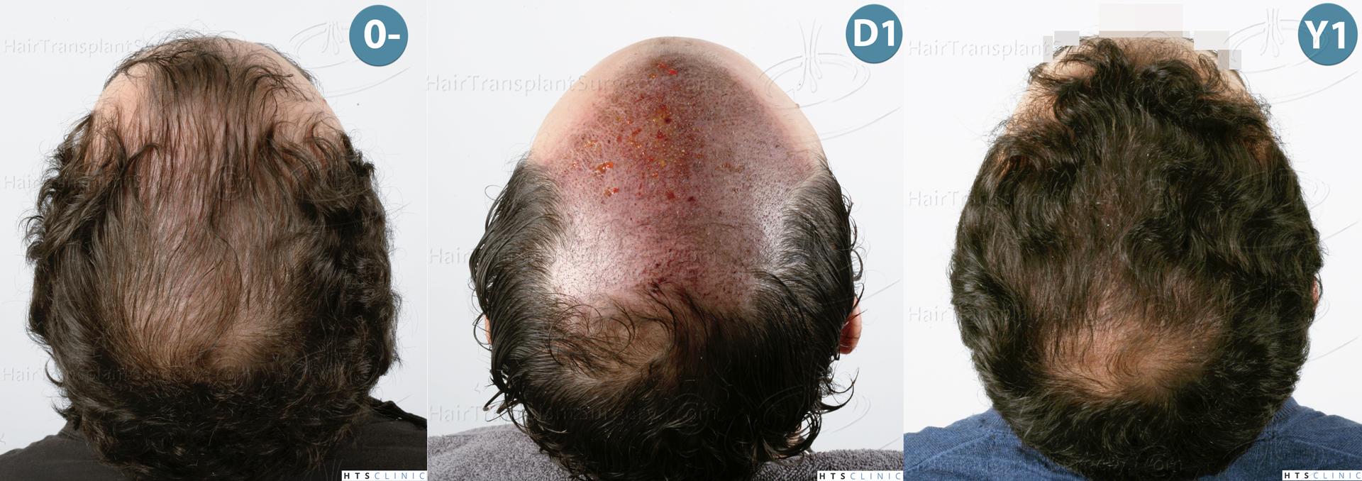 Dr.Devroye-HTS-Clinic-3920-FUT-Montage-5.jpg