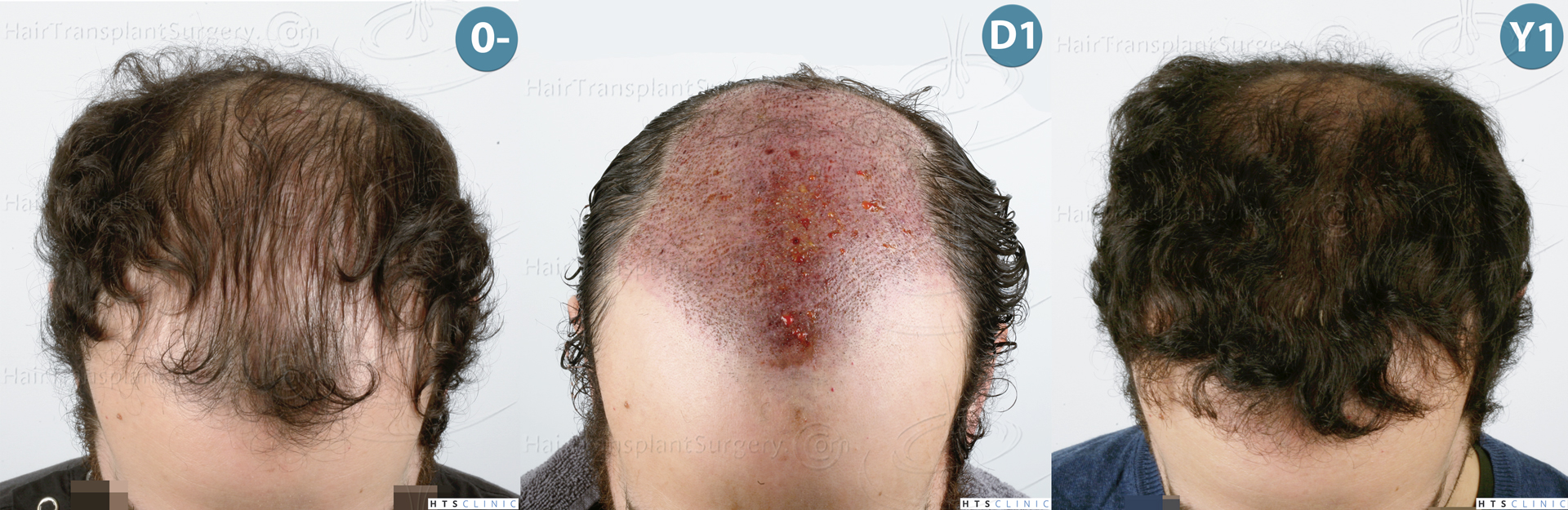 Dr.Devroye-HTS-Clinic-3920-FUT-Montage-3.jpg