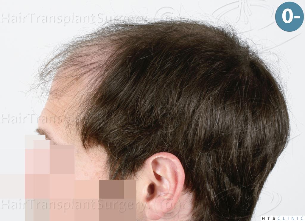 Dr.Devroye-HTS-Clinic-4510-Combo-FUT_FUE-3.jpg