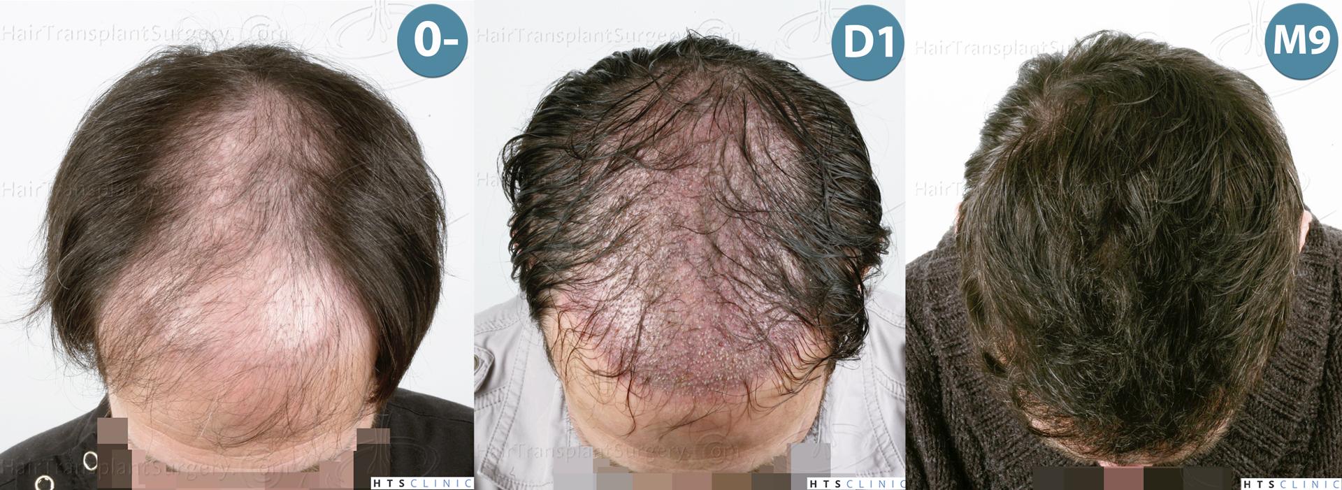 Dr.Devroye-HTS-Clinic-4510-Combo-FUT_FUE-Montage-2.jpg
