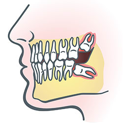 wisdom-teeth-illus