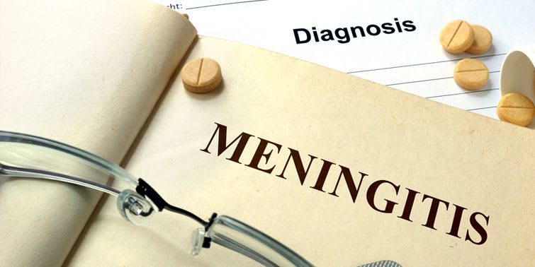 In any case, there are some signs and symptoms which can help speculate meningitis and help in the diagnosis of the condition.