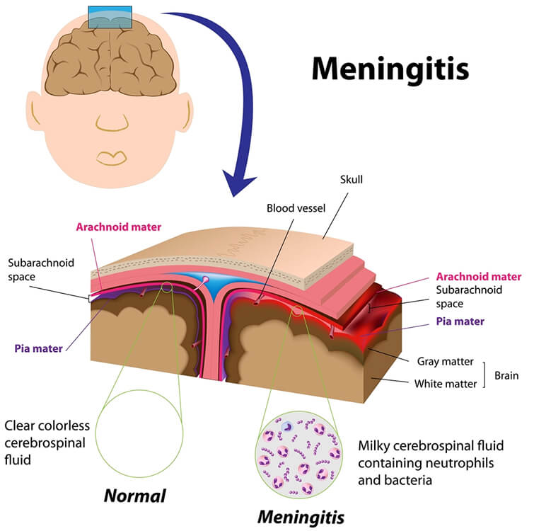 What Is Meningitis And What Are The Causes