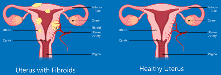 What Are The Uterine Fibroid Symptoms