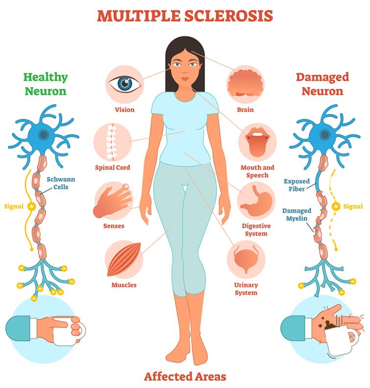 Multiple Sclerosis (MS) 5 Facts Everyone Should Know!