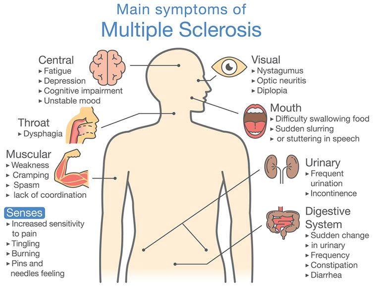 What Are The Symptoms Of Multiple Sclerosis (MS)