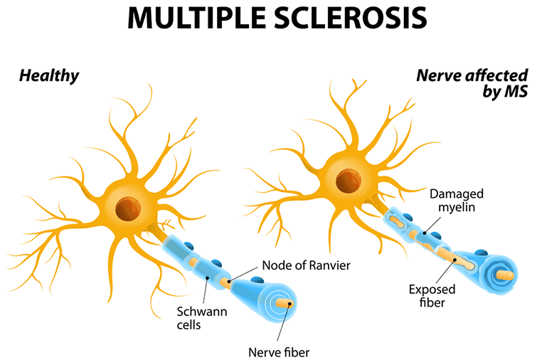 What Is Multiple Sclerosis (MS)