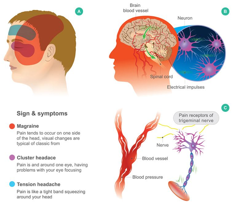 What Are The Symptoms Of Cluster Headache