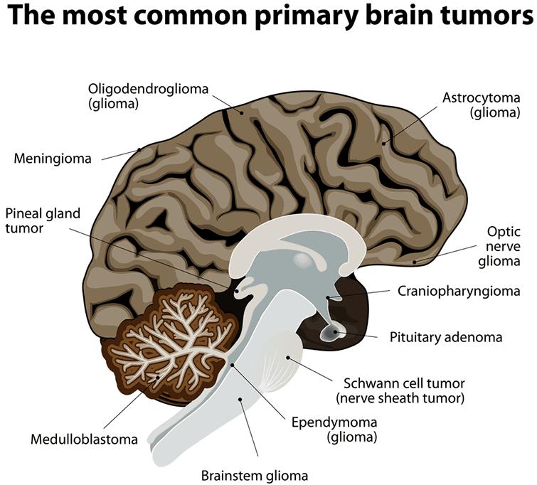 Common Types Of Brain Tumor
