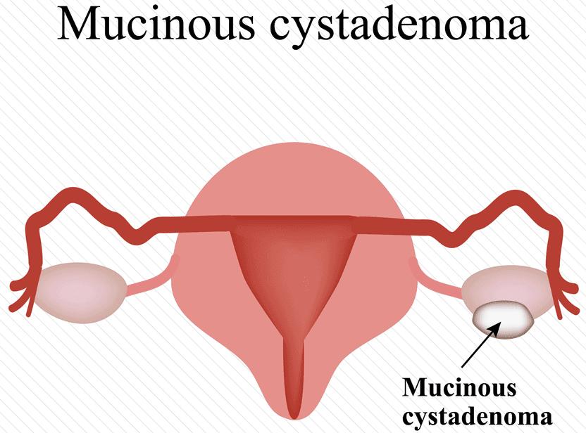 Cystadenomas