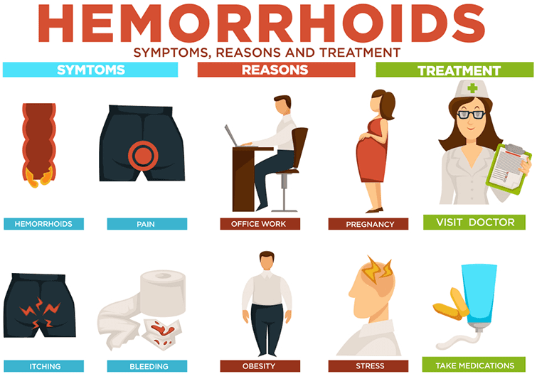 What Are The Piles Or Hemorrhoids Symptoms