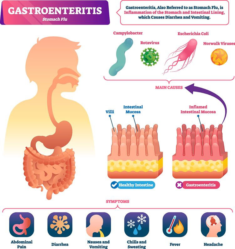 How Does The Gastrointestinal Flu Transmit