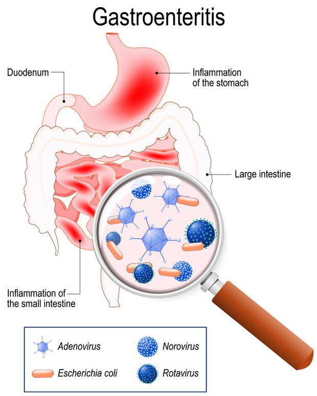 What Causes Stomach Flu