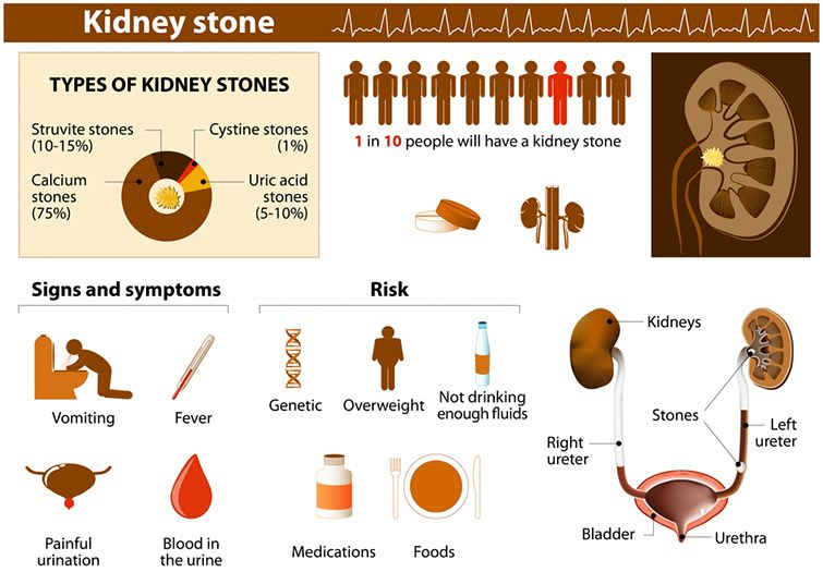 Causes, Symptoms Of Kidney Stones