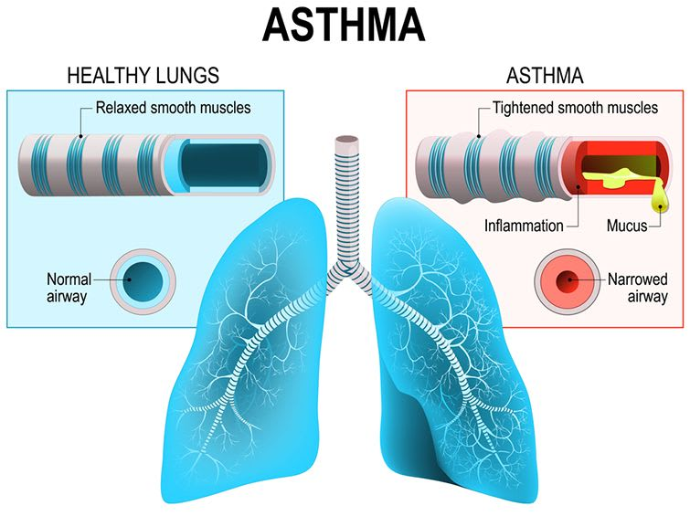 Asthma is a chronic sickness of the airways that transport air to and from the lungs, which cause respiration problem.