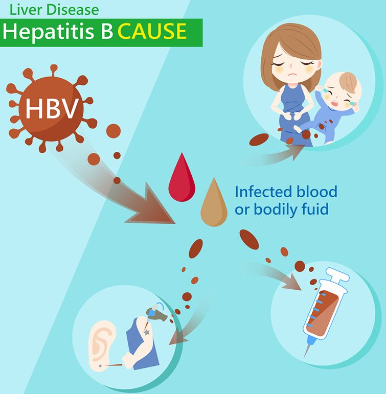 What Are The Causes Of Hepatitis B And The Risk Factors