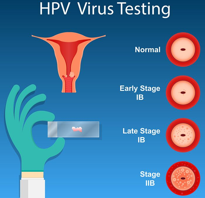 What Is The Pap Smear Or Pap Test