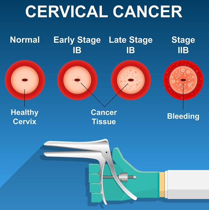 How Can Pap Smear Assist In Cancer Diagnosis