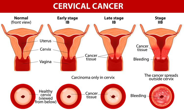 What Are cancer of the cervix And Abnormal Cervical Cells