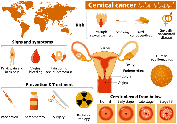 What Causes Cervical Cancer And Abnormal Cervical Cells