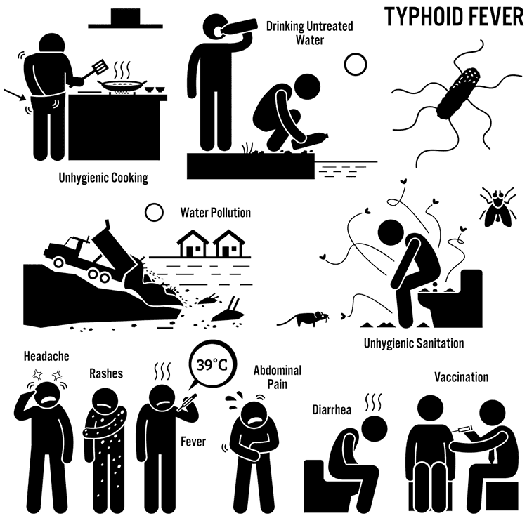 Typhoid or typhoid fever is a common enteric infection (disease of the intestine caused by an infection). Learn causes, treatment & symptoms.