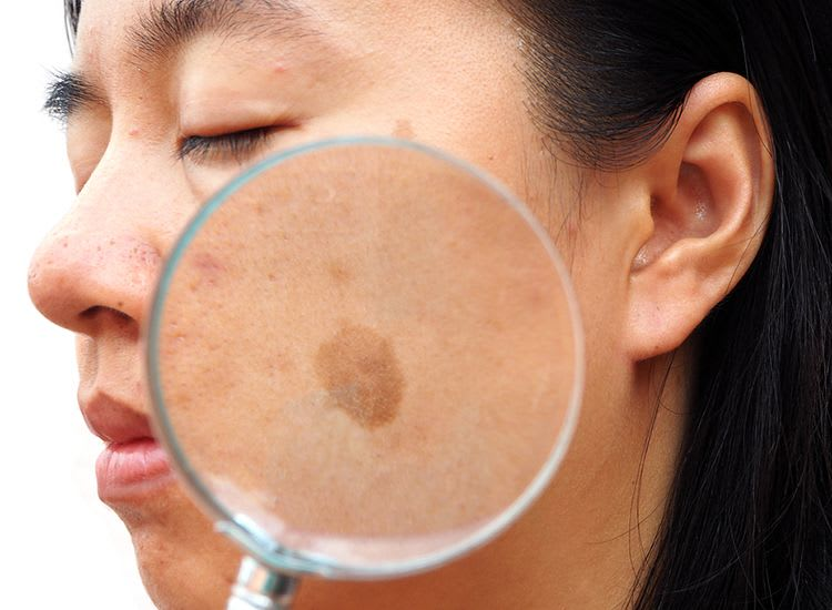 How Does Melasma Look Like