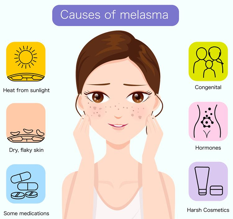 What Are The Causes Of Melasma