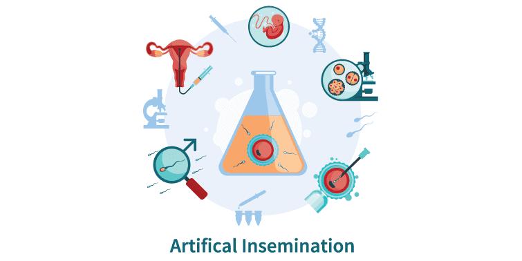 in-vitro fertilization (IVF)