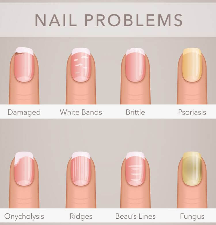 Brittle Nails Treatment And Tips