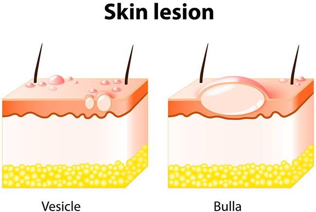 What happens if you come in contact with printer insect. Vesicle and Bulla. Skin lesion.