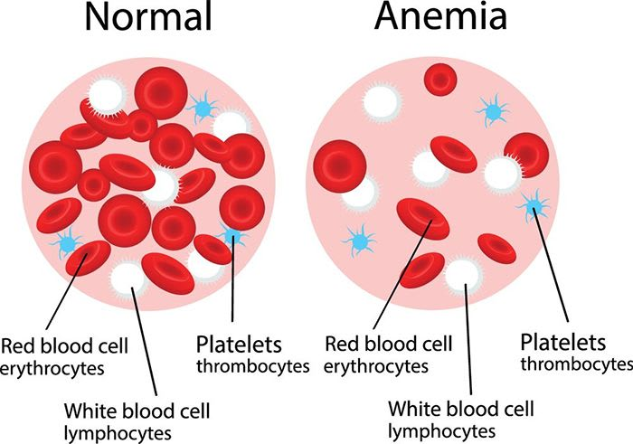In Anemia you lack sufficient healthy red blood cells to supply sufficient oxygen to the tissues of your body. 10 Common Anemic Symptoms.