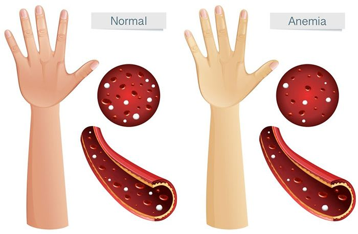 The symptoms of anemia are often subtle and vague, therefore, we start ignoring them, but such symptoms can leave devastating effects later if ignored.