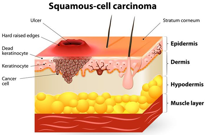 What Causes Head And Neck Cancer Or Head And Neck Squamous Cell Cancer (HNSCC) Squamous-cell carcinoma or squamous cell cancer