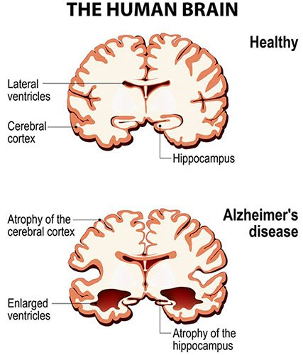 Alzheimer's Disease (AD) is a progressive and irreversible disease of the brain that leads to memory loss, affects thinking ability and interferes with the ability to carry out simple day to day tasks.
