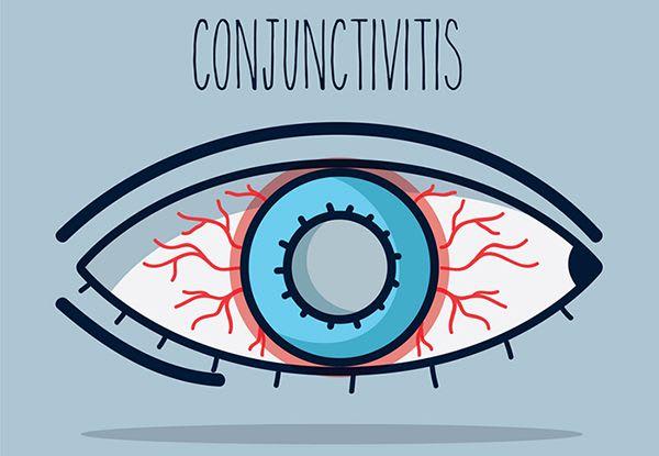 Conjunctivitis Ophthalmalgia