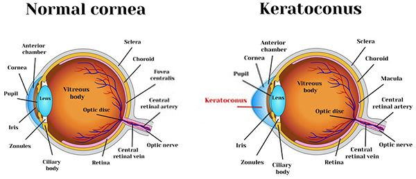 Corneal Abrasion Eye Pain
