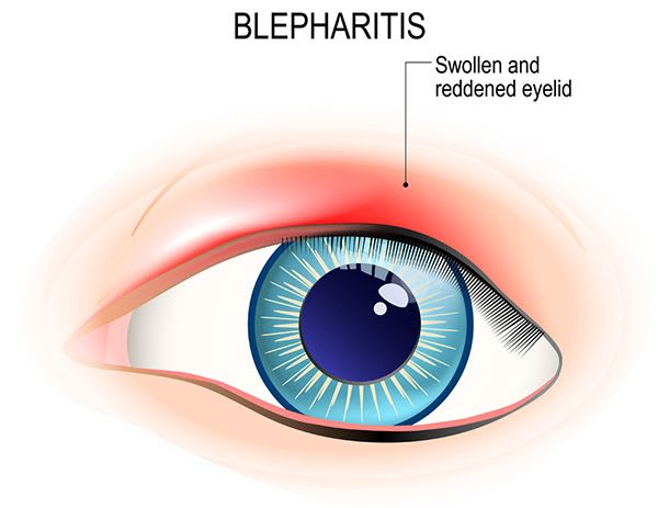 Blepharitis and Stye Ophthalmalgia