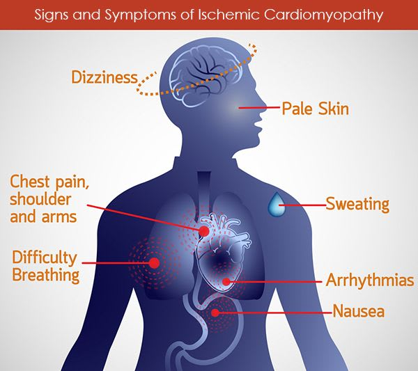 Signs and Symptoms Of Ischemia