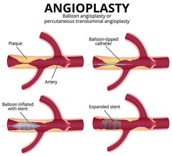 Treatment Of angioplasty, Coronary angiography, angiograms, coronary CT angiogram