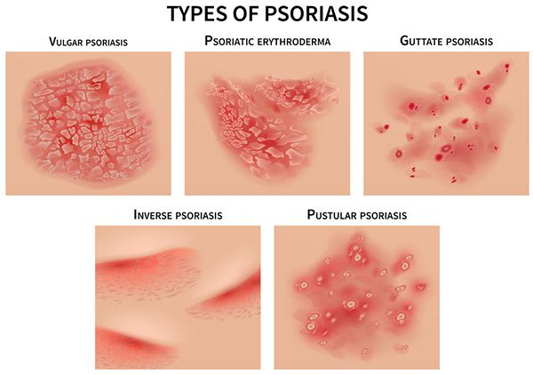 Causes Of Psoriasis And Reasons Of Triggering