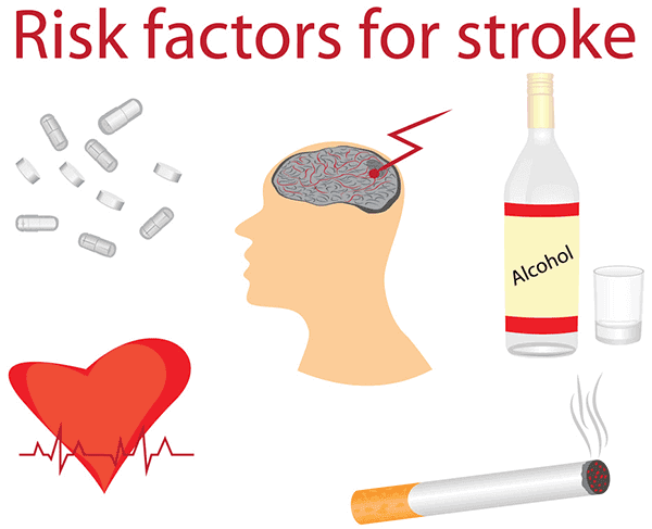 Stroke Prevention: 10 Preventable Risk Factors Of Stroke, risk of stroke, chance of stroke, increase the chance of stroke, risk