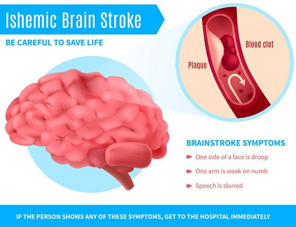 What Are The Types Of Stroke