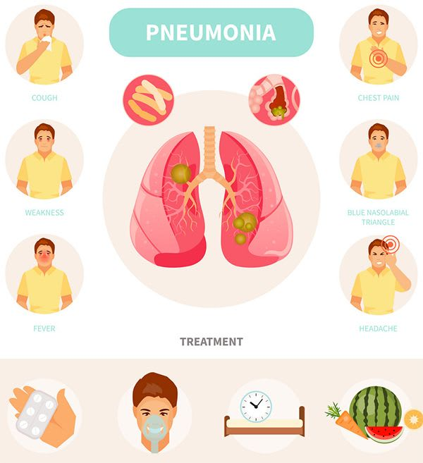 What Are All The Pneumonia Signs And Symptoms, How Is it Treated