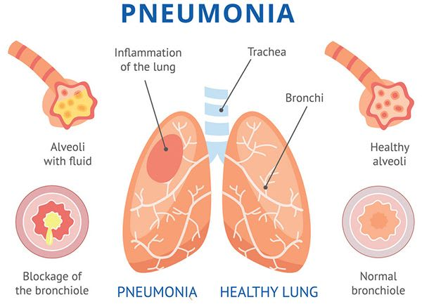 What Happens, What Are The Causes Of Pneumonia